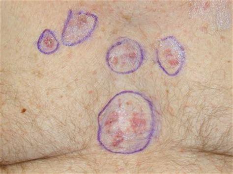 pictures  skin cancer skin cancer symptoms images