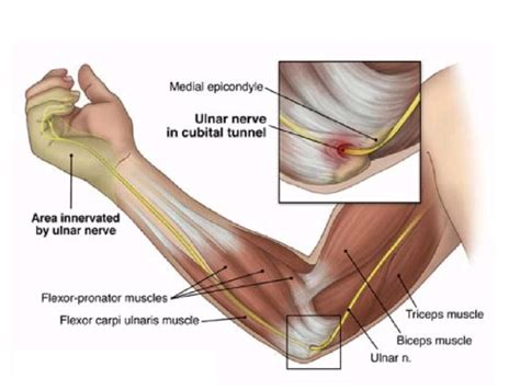 hitting nerve in elbow cubital tunnel syndrome advanced hand