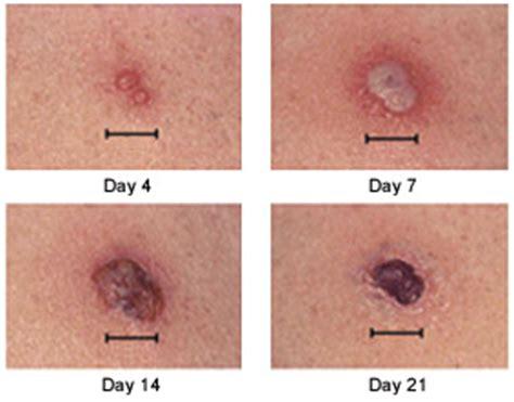 smallpox vaccine patient information, description