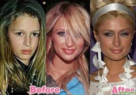 Hiltons After by 28 Plastic Surgery Nightmares