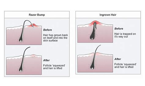 ingrown hair diagram here s why you get ingrown hairs s