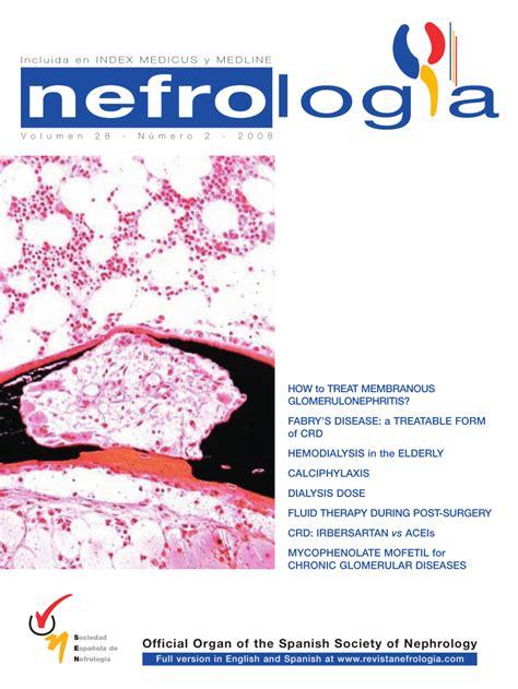 enfermedad de cadenas ligeras pdf pdf renal failure due to light chain deposition disease