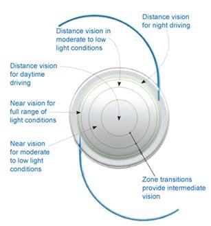 intraocular lens implant,india iol intraocular lenses