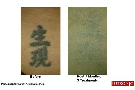 tattoo removal green ink new laser tattoo removal ottawa dermis advanced skin