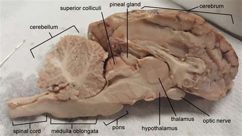 Temporal Bone Dissection Guide cat dissection vessels