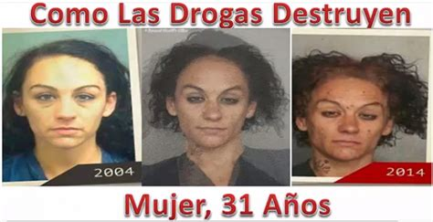 imagenes impactantes sobre la drogadiccion fotos reales e impactantes de c 243 mo las drogas pueden