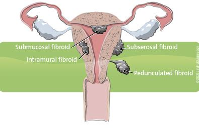 caring for yourself after surgery fibroids a adler gynecology minimally invasive surgery