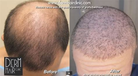 permanent head hair without surgery scalp micropigmentation versus an actual hair surgery