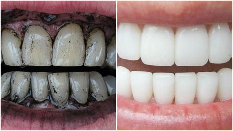 whiten teeth instantly  home  charcoal
