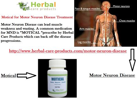 symptoms of motor neuron disease 10 remedies for motor neuron disease herbal care
