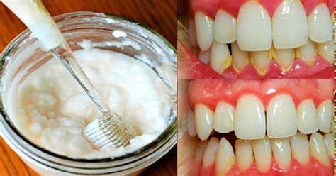 removing plaque from s teeth diy mouthwash to remove plaque from teeth in 2 minutes