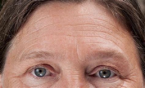wrinkly forehead hair how to get rid of forehead wrinkles naturally daily