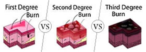 1st Ans Second Mba by Third Degree Burns Difference Between Descriptive
