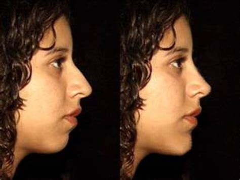 women with weak chins what is cosmetic surgery