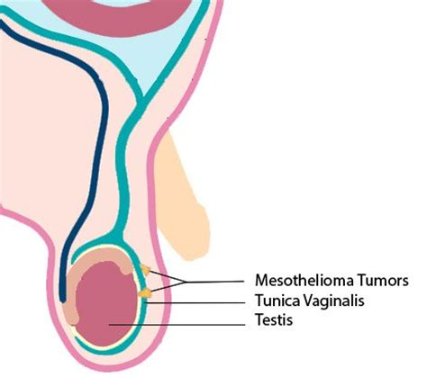 testicular mesothelioma mesothelioma treatment community