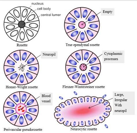 pattern wheel definition rosettes in pathology epomedicine