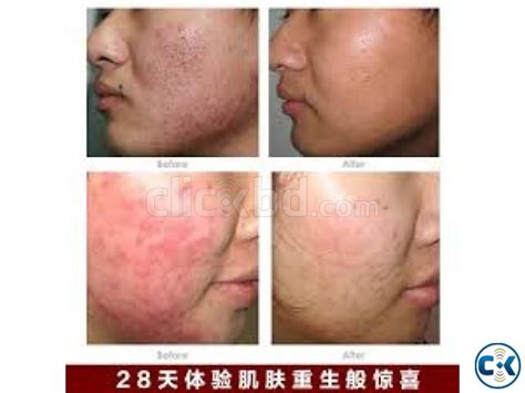 yeast infection on c section scar image gallery fungal acne