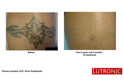 ottawa tattoo removal new laser removal ottawa dermis advanced skin