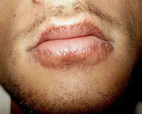 chapped lips causes symptom treatment home remedies