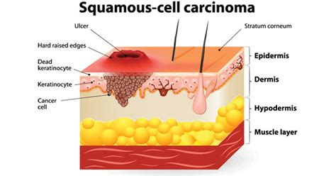 Squamous Cell Carcinoma Research Paper by Squamous Cell Carcinoma Research Paper Writing