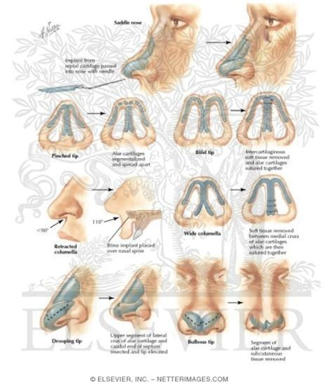 saddle nose tip deformities
