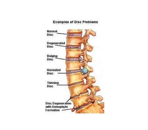 inversion table for spinal stenosis alpha chiropractic clinic 187 archive chiropractor