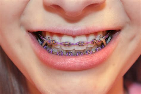 Rubber Bands For Braces Colors by Burbey Orthodontics Appleton Wi Orthodontist Braces
