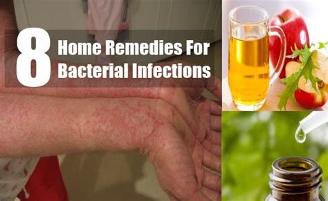 remedies for bacterial infection jaundice how to