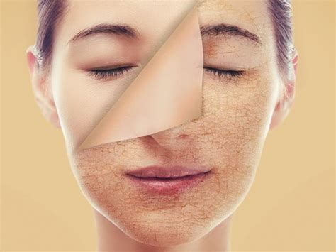7 Reasons To Not Pop A Pimple by 7 Reasons Why You Should Never Pop A Pimple Boldsky