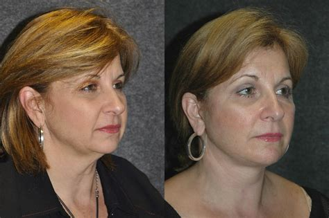 women face lift 55 year woman 10 days after facelift recovery before and