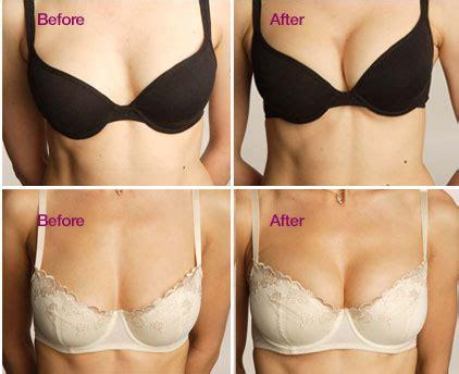Breast Implant Meme - g 246 ğ 252 s b 252 y 252 tme estetiği g 246 ğ 252 s b 252 y 252 tme ameliyatı estetiği