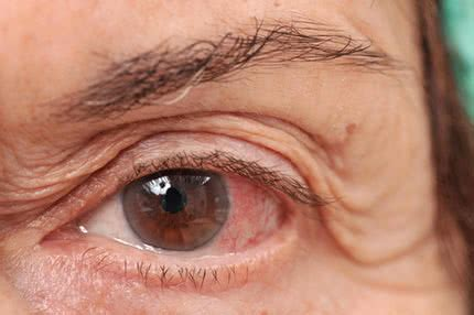 pink eye: how to treat and prevent pink eye (conjunctivitis)