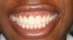 black spots gums
