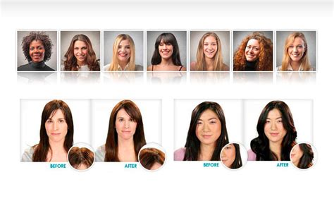 women hair loss before and after provillus natural hair provillus before and after women provillus women healthy