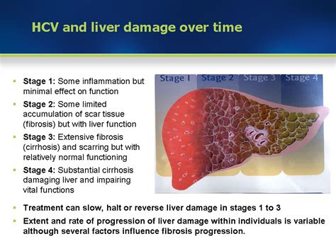 Detoxing Liver Heptiitis C by Module 3 Liver Damage And Course Of Hcv Infection