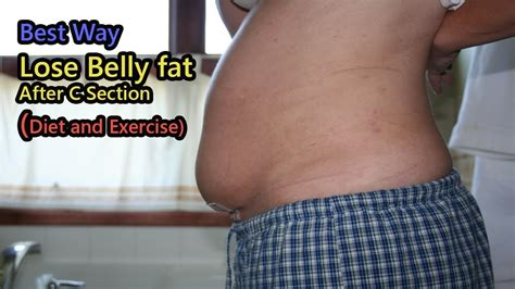 how to reduce belly after c section how to lose belly fat after c section diet and exercise