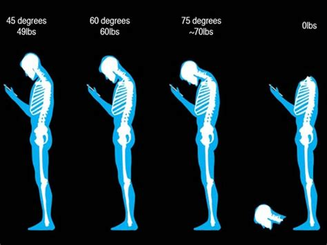 Future Technology Gadgets by Smartphone Addiction Are You Suffering From Text Neck