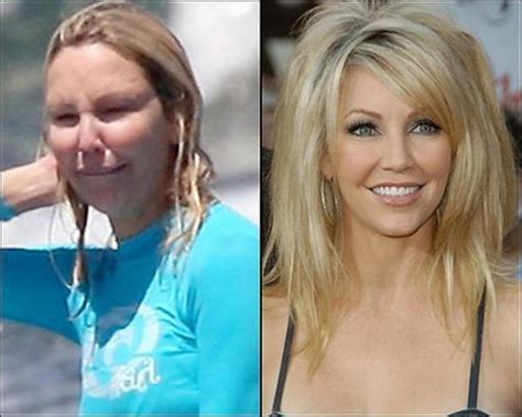 do you think heather ugly because of the plastic surgery