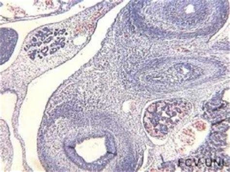 tumore alla testa pancreas tumore pancreas il portale sulla salute e sul benessere