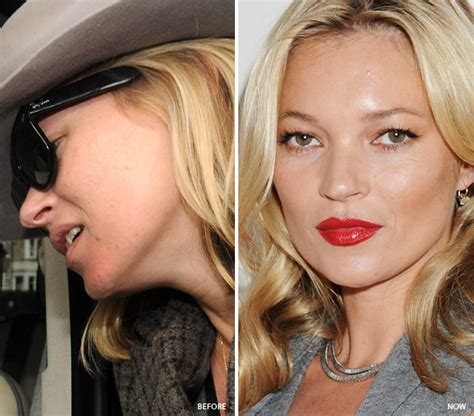 actress with acne celebrities who fixed bad skin adult acne pimples adult