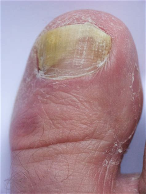 Common Nail Problems Pictures
