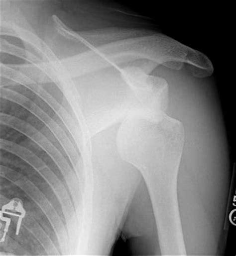 dislocated shoulder dwts derek hough s dislocated shoulder diagnosis