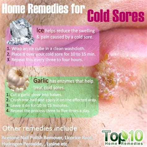 cold sores home remedies from canada home remedies for cold sores cold sore remedies and