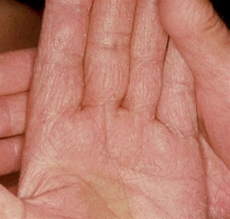 Wood S L Fungal Infection by Fungus Pictures Symptoms Treatment And Causes