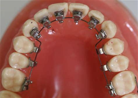 dentist winter garden dental braces regression caution for adults