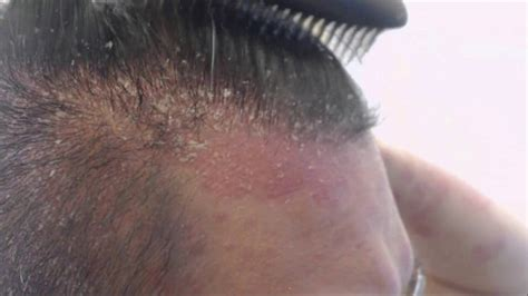 large bump on hairline near right temple general health can bald people get dandruff youtube