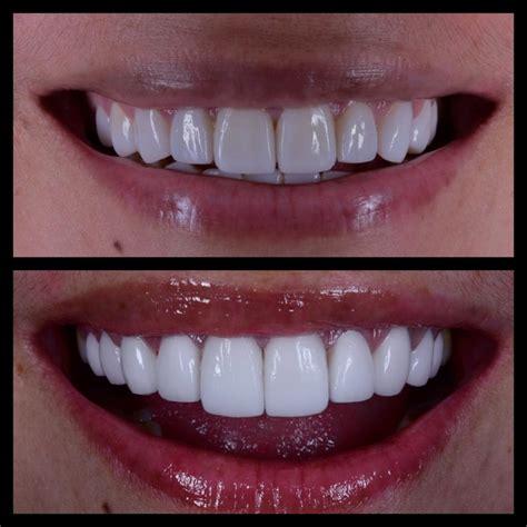 Veneer Pemutih Gigi veneer gigi murah jakarta 6 audy dental