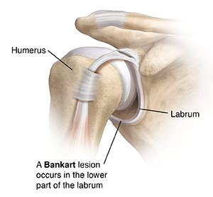 bankart lesion of the shoulder joint | articles | mount
