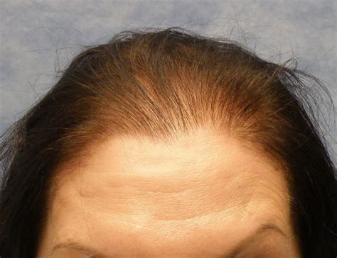 receding hair on womans thinning hairline in women images