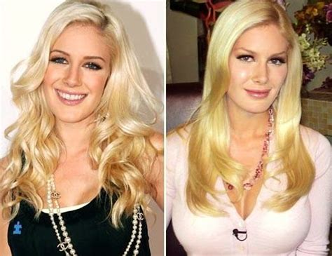 Heidi Montag Plastic Surgery by Heidi Montag Regrets All Of Plastic Surgery Operations